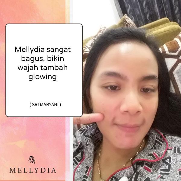 First  Impression Saat Aku Pakai Mellydia Skincare, Review Jujur Pemakaian 10 hari